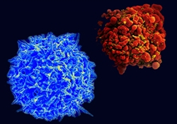 Cover photo for Using Gene Editing to Delete HIV From Human T Cells